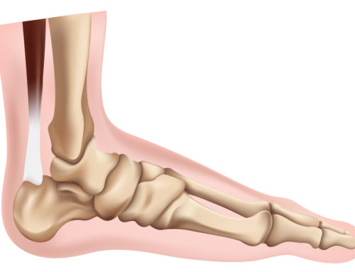 Subtalar Joint Assessments & Treatments